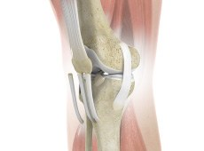 ACL Reconstruction of Patellar Tendon