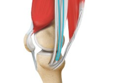 ACL Reconstruction Procedure of Hamstring Tendon