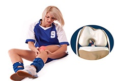 Women and ACL Injuries